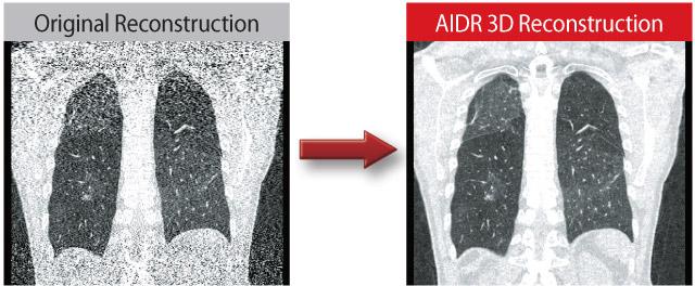 AIDR 3D Reconstruction