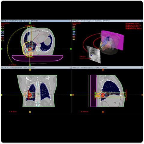 Respiratory Gated System