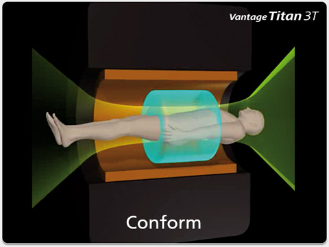 Magnetic Field Conform