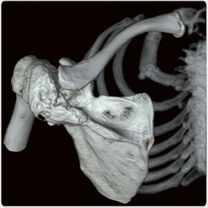 Scapula fracture