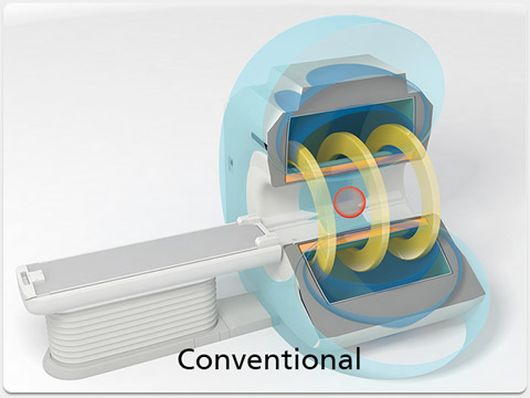 Advanced Magnet System Conventional