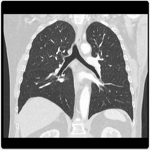 Lung Metastasis